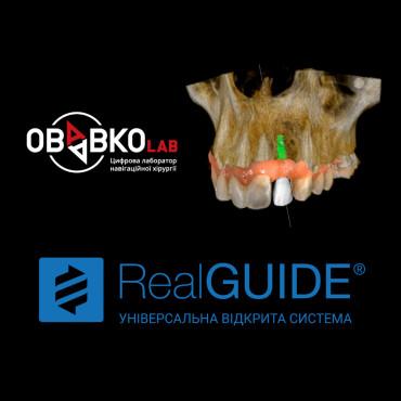 Цифровий протокол імплантологічного лікування.Огляд програмного забезпечення для планування імплантації Real Guide