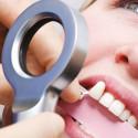 Прилад для визначення кольору емалі зуба - Shade Matching Light