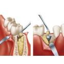 Деминерализованный костный матрикс SteriFuse™